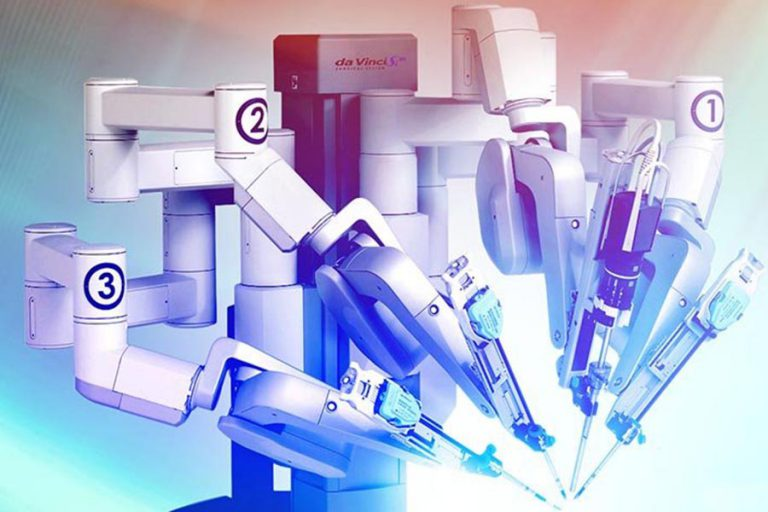 Robot Assisted clamp less Partial Nephrectomy in renal cell carcinoma